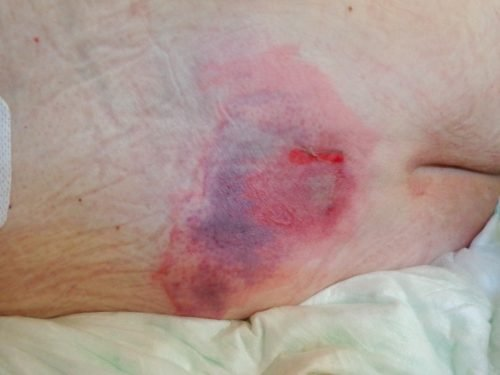 Wound Care: Effectively Staging Pressure Ulcers